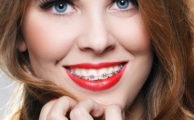 Dr Fournier dentiste esthétique orthodontie