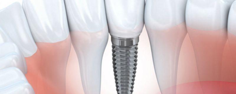 Plan de traitement implantaire